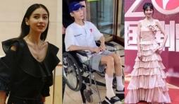 Sao Cbiz thành thảm họa khi giảm cân: La Vân Hi như ông cụ, Angela Baby 2 hàng xương biểu tình
