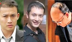Dàn nam thần Hoa ngữ hói đầu khiến netizen tá hỏa