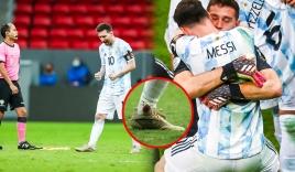 Messi chân rớm máu, gặp chấn thương vẫn cố gồng gánh Argentina vào chung kết Copa America