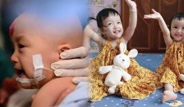 Tròn 1 năm sau ngày Trúc Nhi - Diệu Nhi được tách dính: Người mẹ hé lộ tình hình hiện tại của hai con