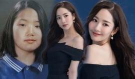 Park Min Young đẹp nao lòng trong loạt ảnh mới, xứng danh mỹ nhân 'dao kéo'