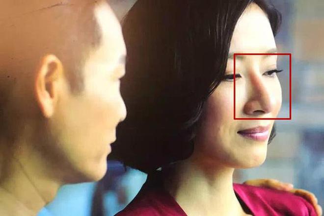 Những chiếc mũi phát sáng của Trịnh Sảng, Cúc Tịnh Y, Angela Baby: Nghi vấn PTTM 4