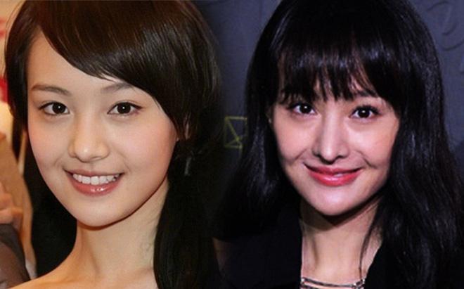 Những chiếc mũi phát sáng của Trịnh Sảng, Cúc Tịnh Y, Angela Baby: Nghi vấn PTTM 1
