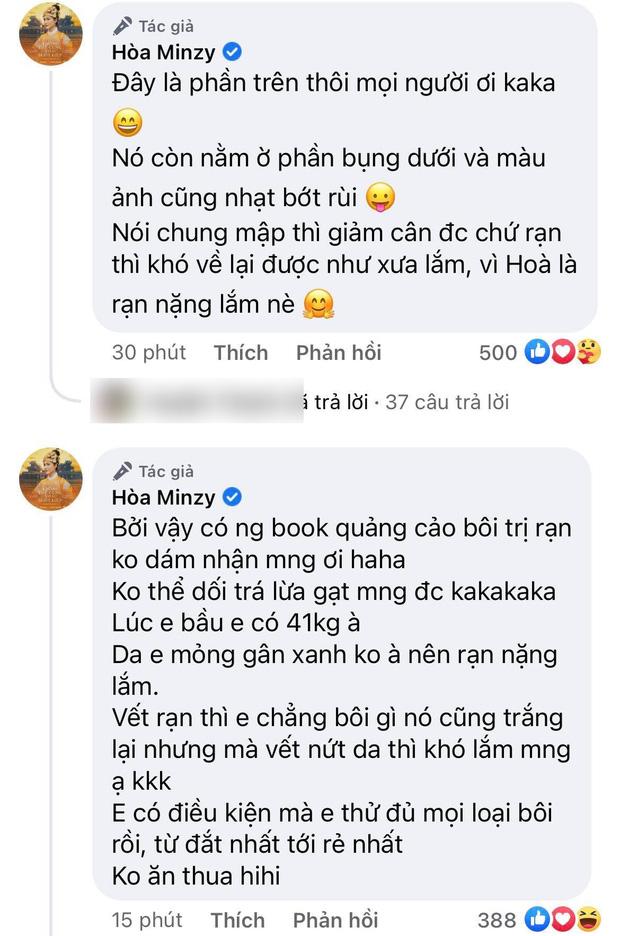 Hoà Minzy đăng tải bụng bầu bé Bo 'chằng chịt' thâm đen, ai làm mẹ mới hiểu sự hi sinh này 4