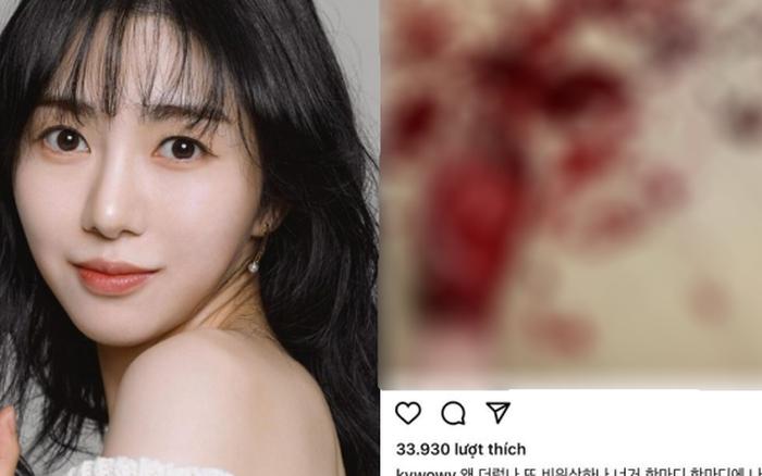 NÓNG: Idol Hàn Quốc Mina (AOA) tự 'chấm dứt cuộc đời' lần thứ 4 tại nhà riêng 4